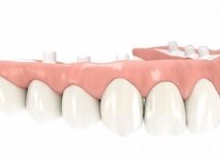 Denture Alternative