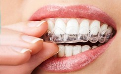 RXaligners